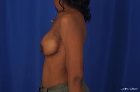 Breast Lift Streeterville, Chicago 2379 - Before Image 2