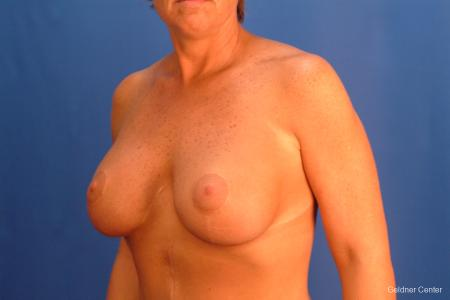 Chicago Breast Augmentation 2524 -  After Image 3