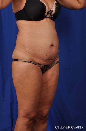Lipoabdominoplasty: Patient 5 - Before Image 2