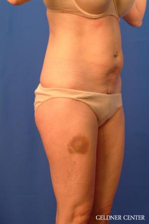 Tummy Tuck: Patient 36 - Before Image 2