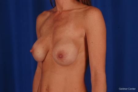 Breast Augmentation: Patient 158 - Before and After Image 4