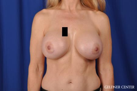 Chicago Breast Augmentation 5467 -  After Image 1