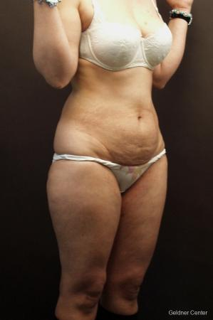 Tummy Tuck: Patient 8 - Before Image 2
