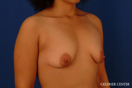 Breast Augmentation: Patient 160 - Before Image 2