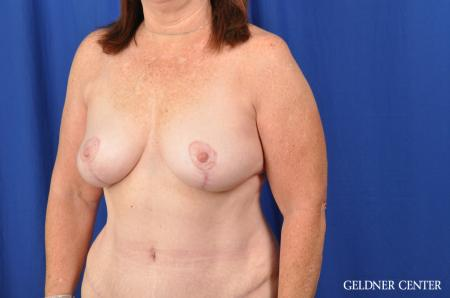 Breast Lift Hinsdale, Chicago 3232 -  After Image 4