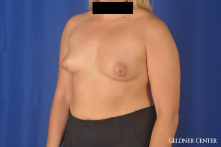 Breast Augmentation: Patient 179 - Before and After Image 4