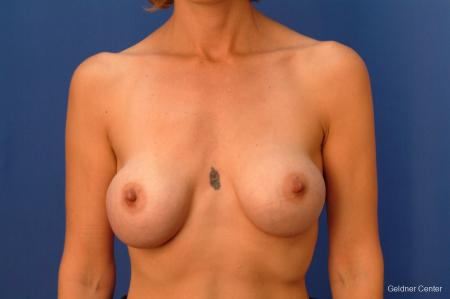 Chicago Complex Breast Augmentation 2415 - Before Image 1
