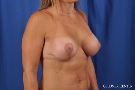 Breast Lift: Patient 42 - After Image 3