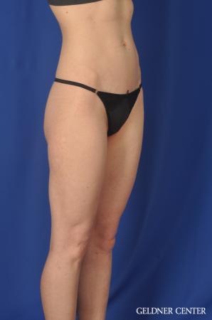 Liposuction: Patient 36 - After Image 2