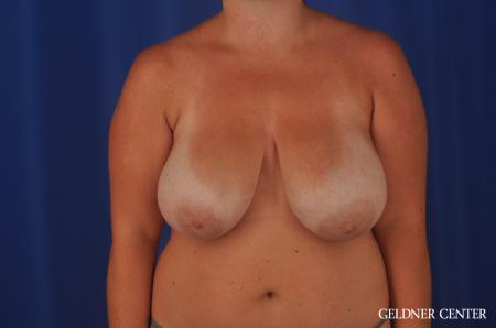 Chicago Breast Reduction 11855 - Before Image 1