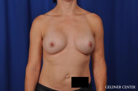 Breast Augmentation Lake Shore Dr, Chicago 4286 -  After Image 1