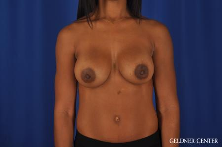 Chicago Breast Augmentation 4291 -  After Image 1