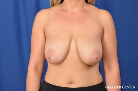 Breast Lift: Patient 40 - Before Image 1