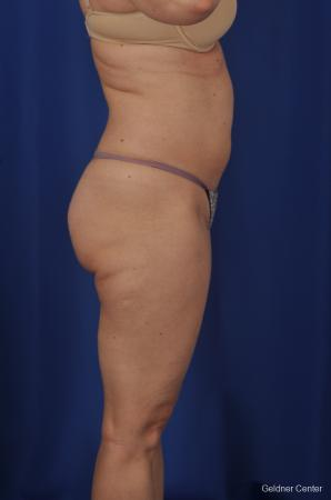 Vaser lipo patient 2069 before and after photos - Before Image 2