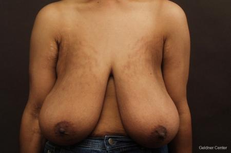 Breast Reduction Hinsdale 2440 - Before Image