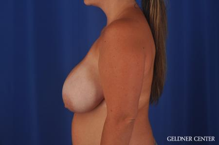 Chicago Breast Reduction 11855 - Before Image 3