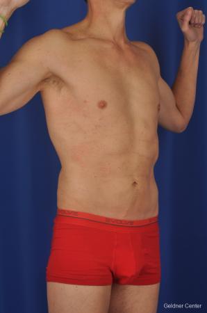 Liposuction For Men: Patient 2 - After Image 2