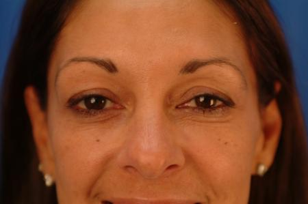 Eyelid Lift Hinsdale, Chicago 2404 - Before Image