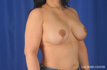 Complex Breast Augmentation: Patient 32 - After Image 2