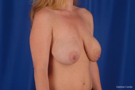 Complex Breast Augmentation Lake Shore Dr, Chicago 2290 - Before Image 2