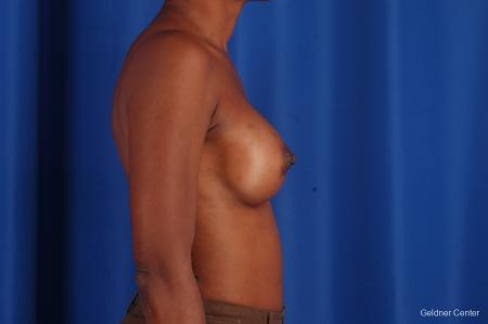 Chicago Breast Augmentation 2293 -  After Image 2