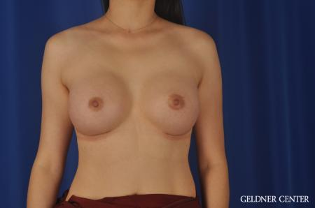 Breast Augmentation Hinsdale, Chicago 8751 -  After Image 1
