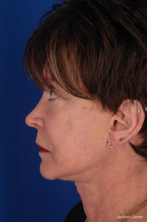 Neck Lift: Patient 4 - After Image 4
