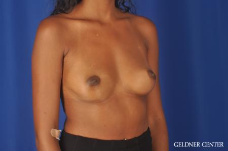 Chicago Breast Augmentation 11869 - Before Image 2