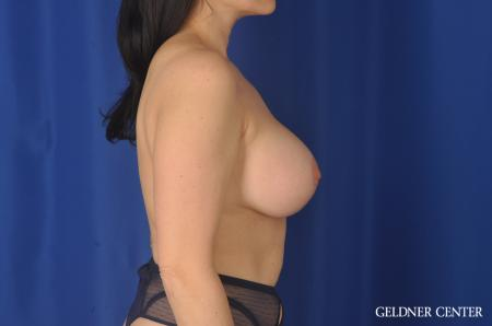Chicago Breast Lift 11857 -  After Image 2
