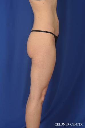 Liposuction: Patient 36 - After Image 3