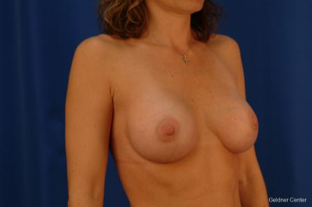 Chicago Breast Augmentation 2442 -  After Image 3