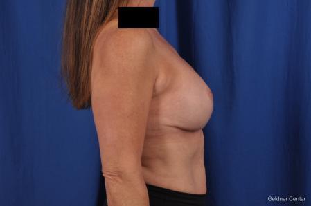 Complex Breast Augmentation: Patient 35 - After Image 2