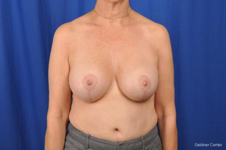 Breast Lift Hinsdale, Chicago 2058 -  After Image 1