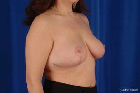 Breast Reduction Streeterville, Chicago 2289 -  After Image 3