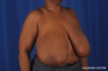 Chicago Breast Reduction 11871 - Before Image 2