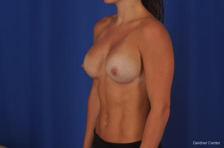 Chicago Breast Augmentation 2393 -  After Image 3
