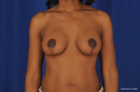 Breast Lift Streeterville, Chicago 2379 -  After Image 1