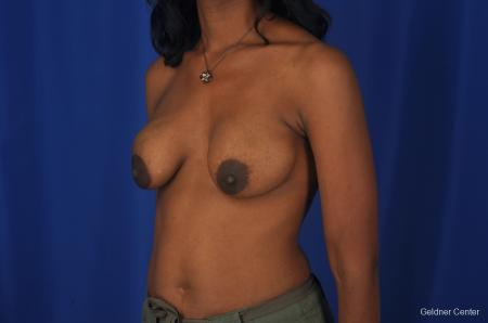 Breast Lift Streeterville, Chicago 2379 - Before Image 3