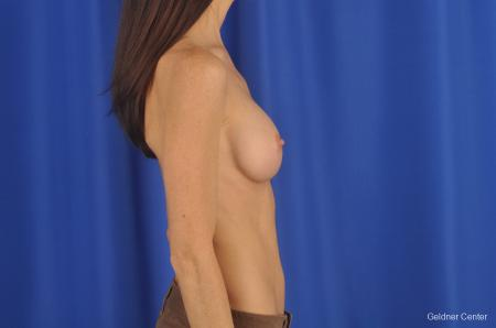 Breast Augmentation Hinsdale, Chicago 2311 -  After Image 2