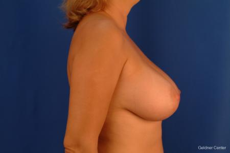 Chicago Breast Augmentation 2532 -  After Image 2