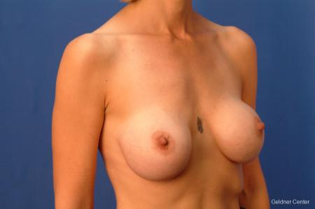 Chicago Breast Augmentation 2414 - Before Image 2