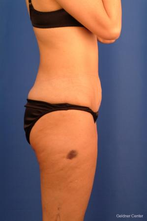 Vaser lipo patient 2520 before and after photos -  After Image 2