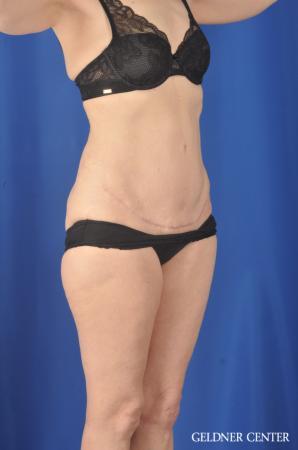 Liposuction: Patient 33 - After 2