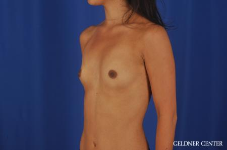 Breast Augmentation Lake Shore Dr, Chicago 5545 - Before Image 4