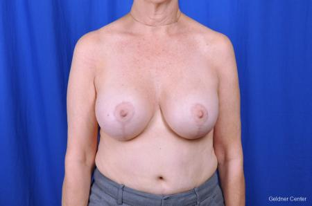 Breast Augmentation Lake Shore Dr, Chicago 2057 -  After Image 1