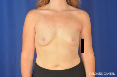 Breast Augmentation Streeterville, Chicago 11870 - Before Image 1