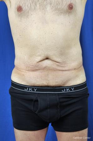 Liposuction-for-men: Patient 8 - Before Image
