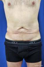 Liposuction-for-men: Patient 8 - Before