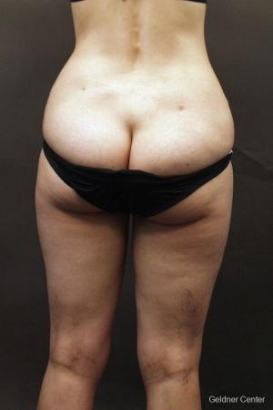 Liposuction: Patient 5 - Before Image 3