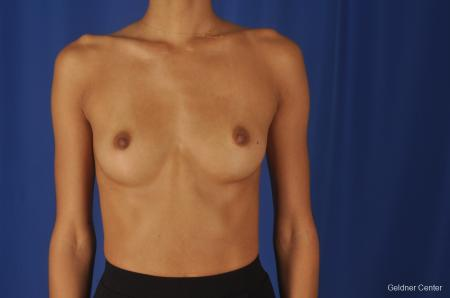 Breast Augmentation: Patient 84 - Before Image 1